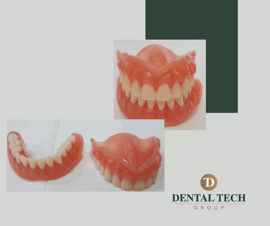 New denture, new smile