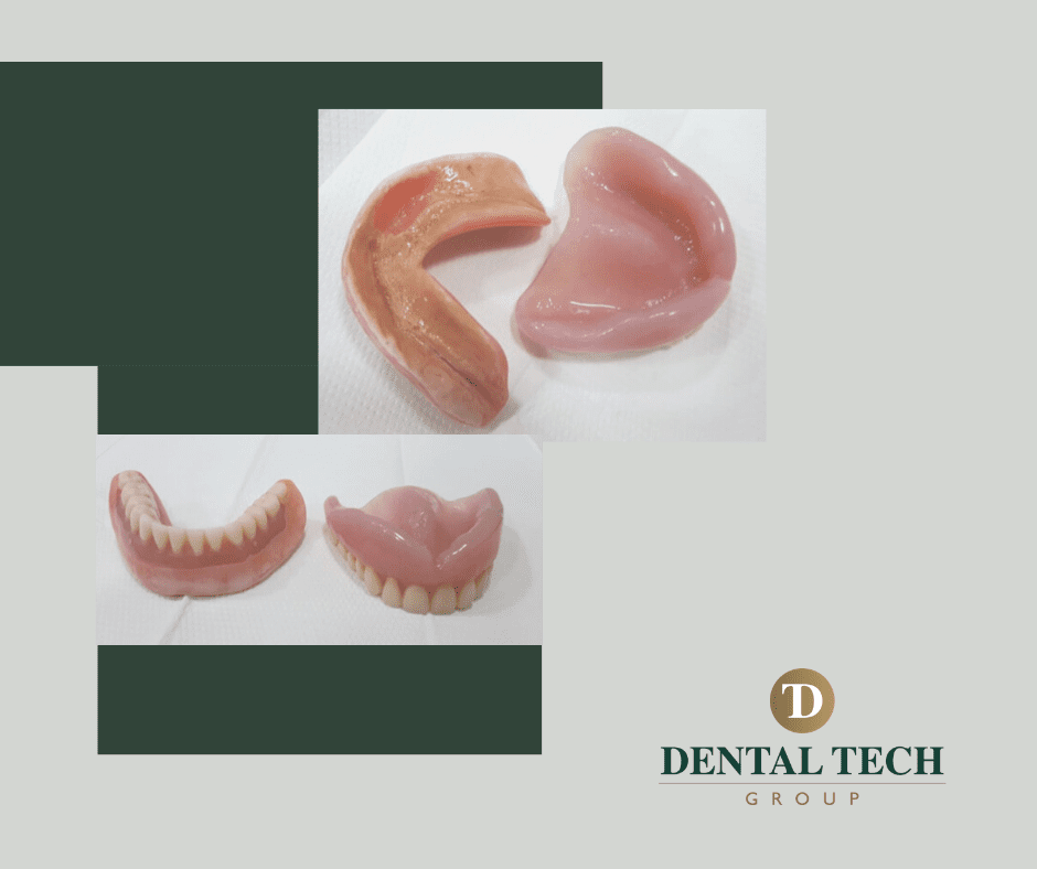 Starting the case; old dentures